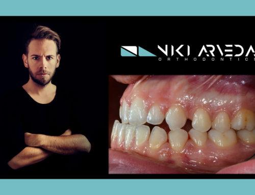 III classe scheletrica: chirurgia o camouflage ortodontico?