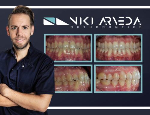 III classe scheletrica: camouflage ortodontico con apparecchiatura INVISIBILE